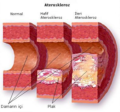 kolesterol tinggi1 Atasi Masalah Kolesterol: Panduan Turunkan Paras Kolesterol