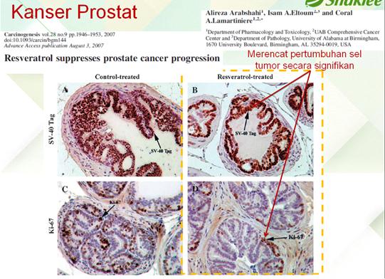 Vivix Kanser Prostat Bagaimana Resveratrol Membantu Pesakit Diabetes, Kanser & Jantung?   Kajian Saintifik Membuktikannya.