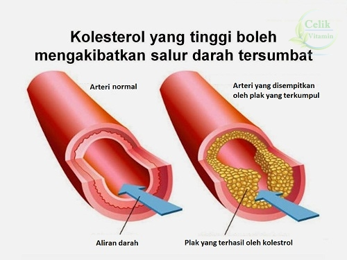Image result for kolestrol